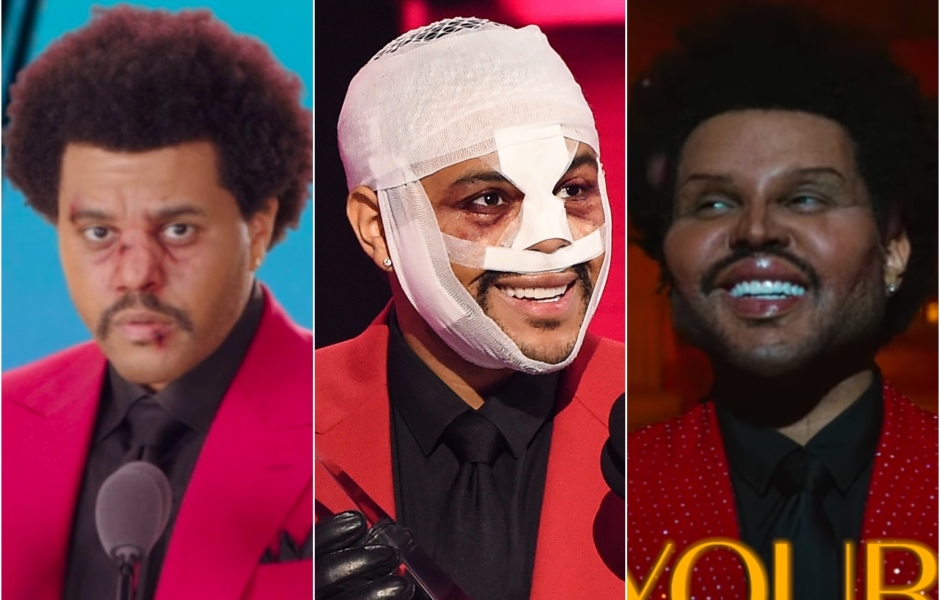 the-weeknd-plastic-surgery-face