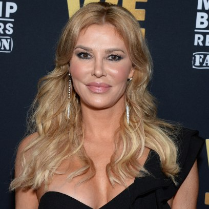 brandi-glanville-real-housewives-plastic-surgery