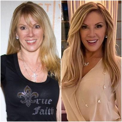 ramona-singer-plastic-surgery-transformation