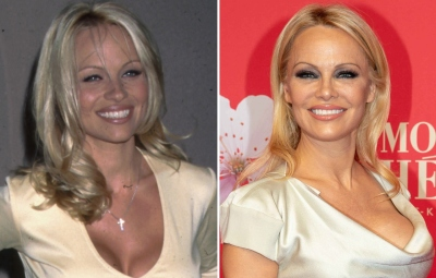 From 'Baywatch' to Today! See Pamela Anderson's Transformation Over the Years