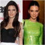 kendall-jenner-plastic-surgery-everything-she-said