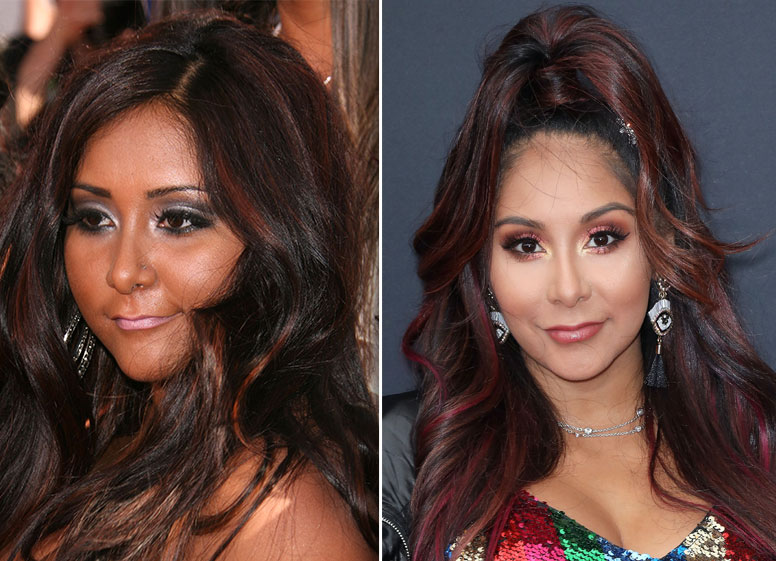 Jersey Shore' Stars Plastic Surgery Transformations: See Photos