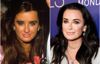 kyle-richards-rhobh-transformation