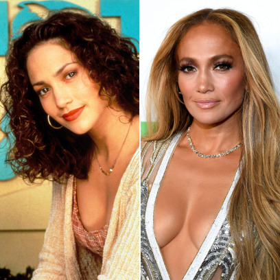 Did Jennifer Lopez Have Plastic Surgery? Photos Young and Now