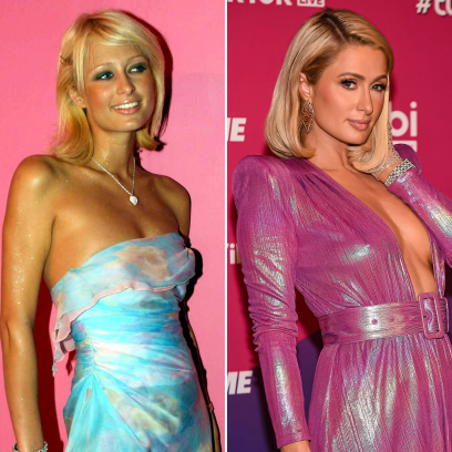 Did Paris Hilton Get Plastic Surgery? What the Heiress Had Done
