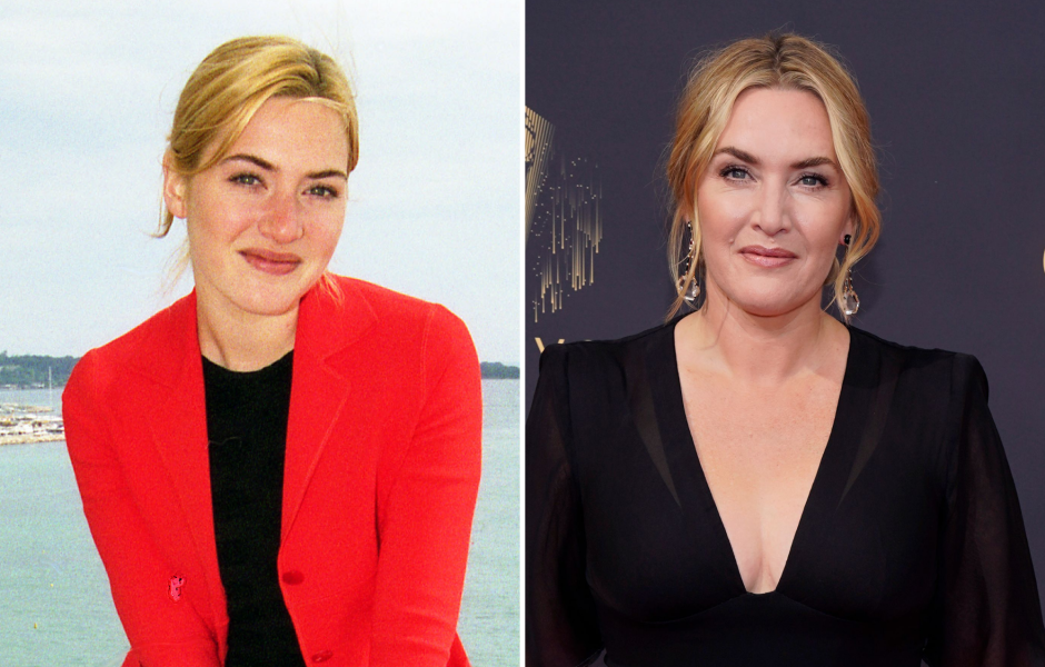 Did Kate Winslet Have Plastic Surgery? Transformation Photos