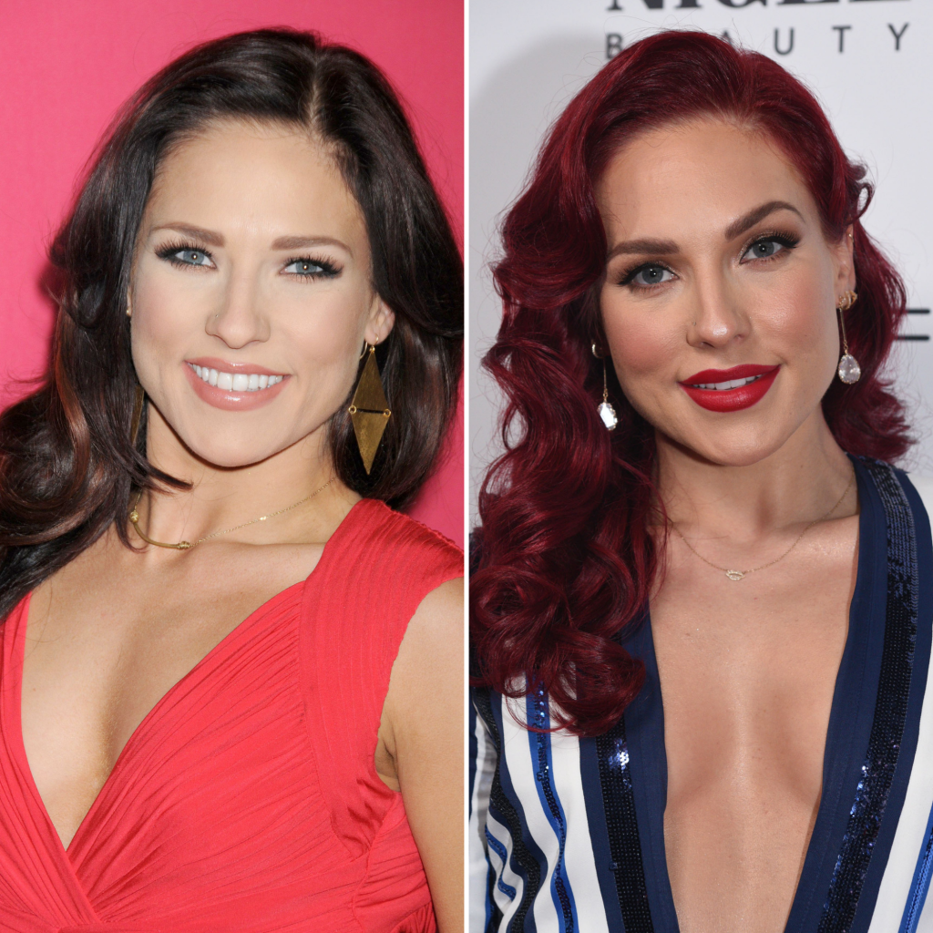 'Dancing With the Stars' Pros Who've Talked About Plastic Surgery Sharna Burgess