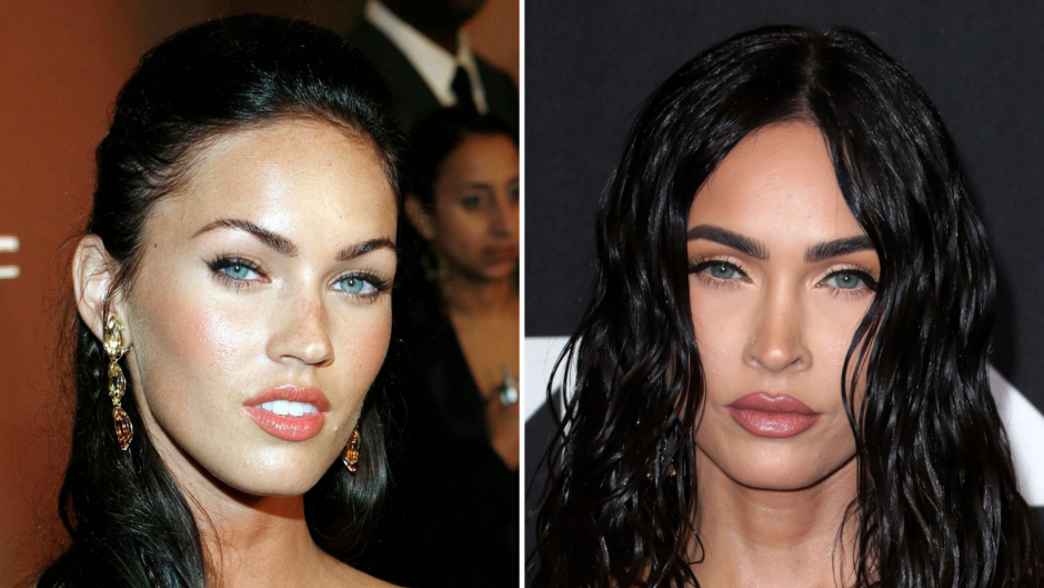 Plastic Surgery? See Megan Fox's Transformation Right Before Your Eyes